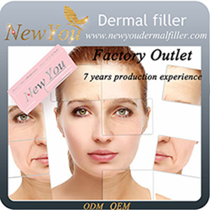 NEW YOU Supply Perfect Deep 2ml Hyaluronic Acid Dermal Filler for Anti Wrinkle