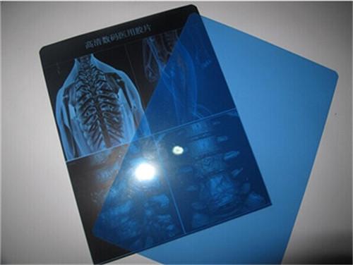 blue inkjet medical film NYDSW05