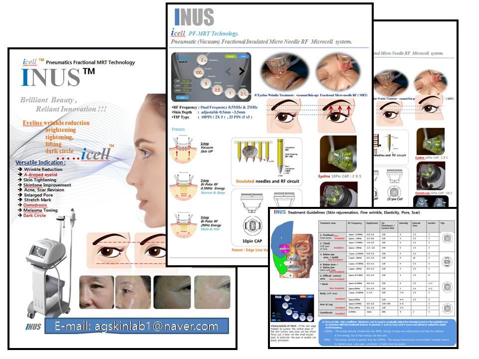 Dermatology : Eyelid Wrinkle Reduction ( RF+Vacuum+Electric Multi Needle)