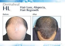 hair regrowth oil