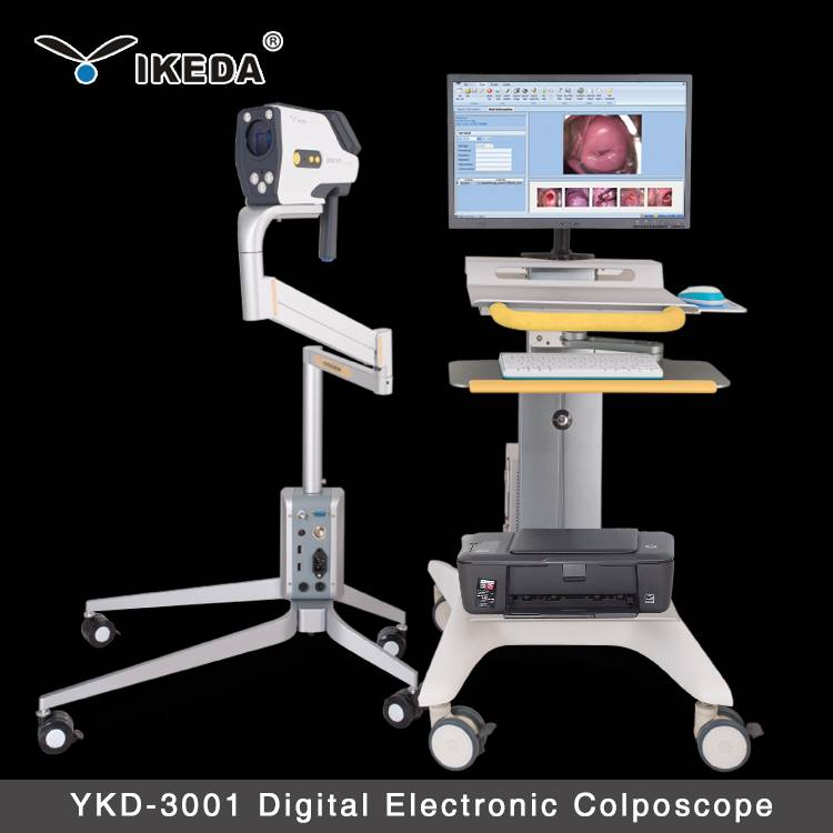 ykd-3001 1080p HD digital video colposcope for vagina