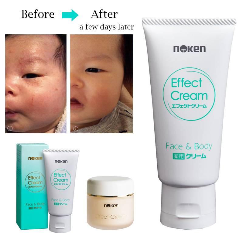 Multi-cure Effect Cream for Eczema Treatment