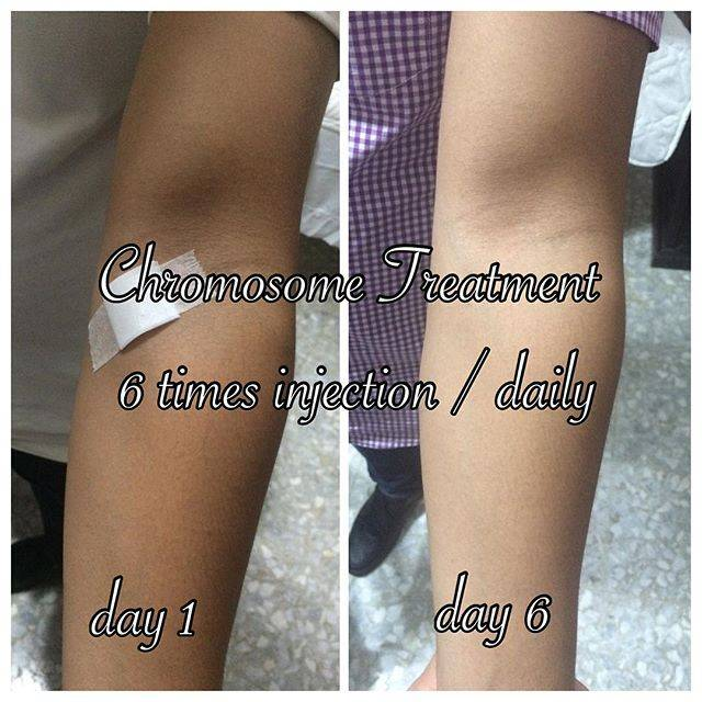 Gluthatione Injections in mumbai- Fast effective result in 3 days for dark skin