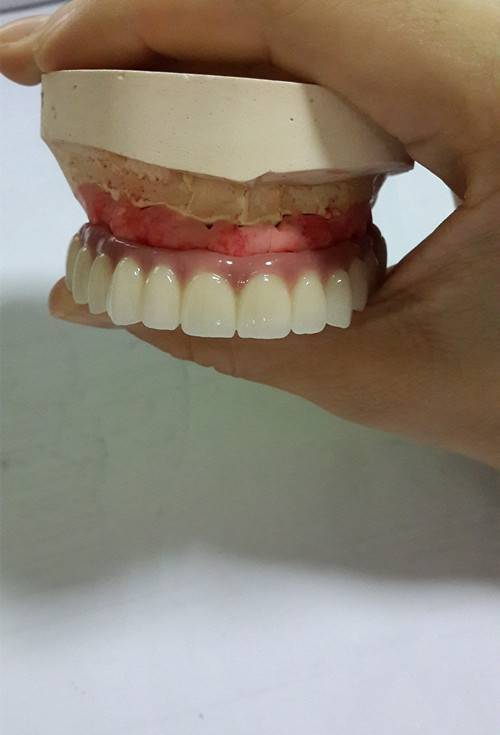Screw retained implant long bridge with gingival porcelain