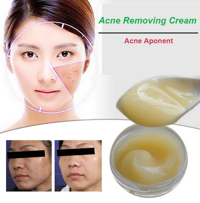 Acne Removing Cream