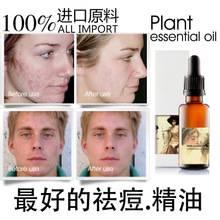 Sell Remove acne oil