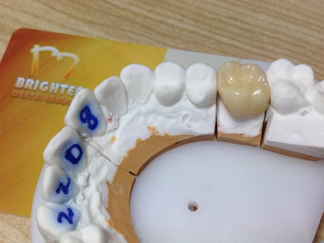 BDL dental restoration Sagemax Zirconia CAD CAM Crown&Bridge