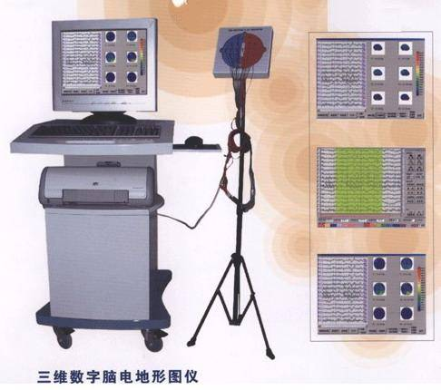 Color 3-D Digital Electroencephalograph (3-D Digital Brain Electrical Activity Mapping)