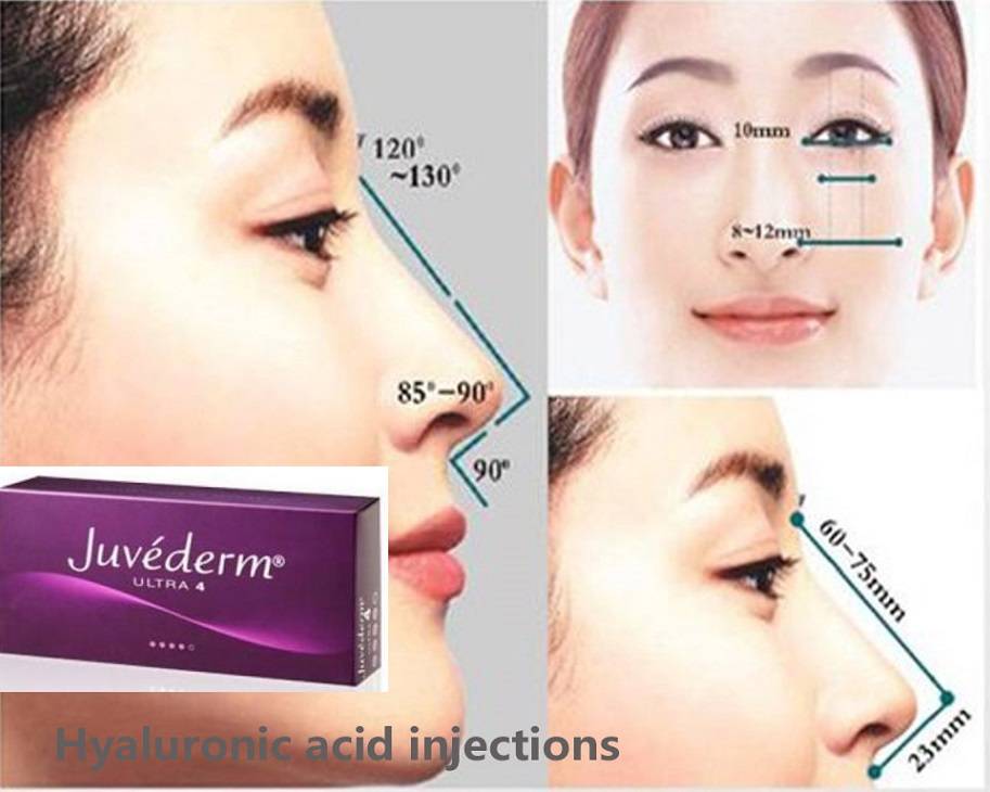 Dermal Fillers Cross Link Hyaluronic acid lips filler & Radiesse 1.5ml