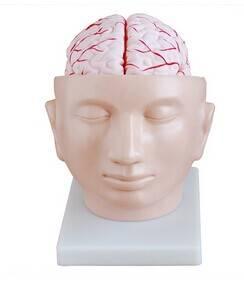 Brain with Arteries on Head