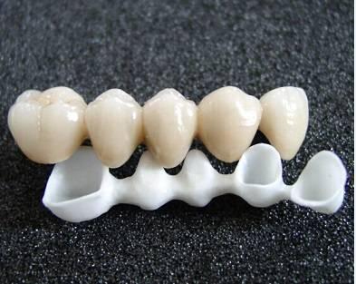 BDL dental restoration Upcera Zirconia Crown&Bridge