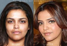 DARK SPOT REMOVAL INJECTIONS- FAST EFFECTIVE RESULT IN 5 DAYS