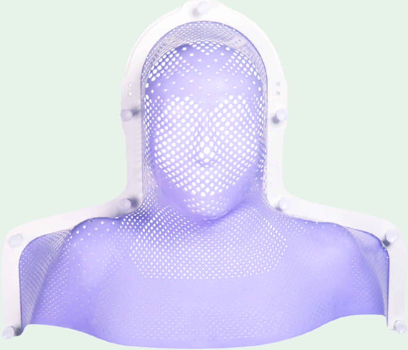 Thermoplastic mask for radiotherapy fixation and immobilization