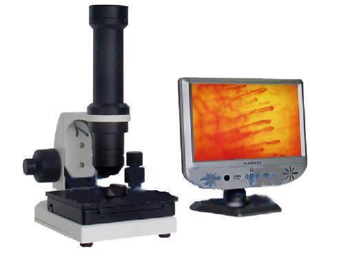 Microcirculation Analyzer
