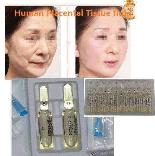 Human Placenta Tissue Fluid Placental Histosolution injection