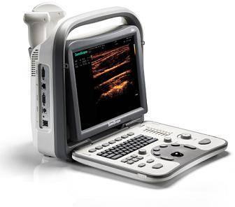 Sonoscape A6 Ultrasound