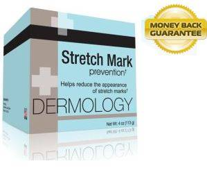 Remove Your Stretch Marks