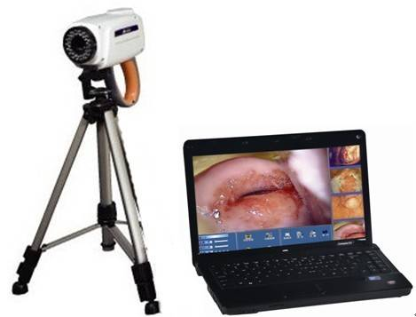 digital electronic colposcope
