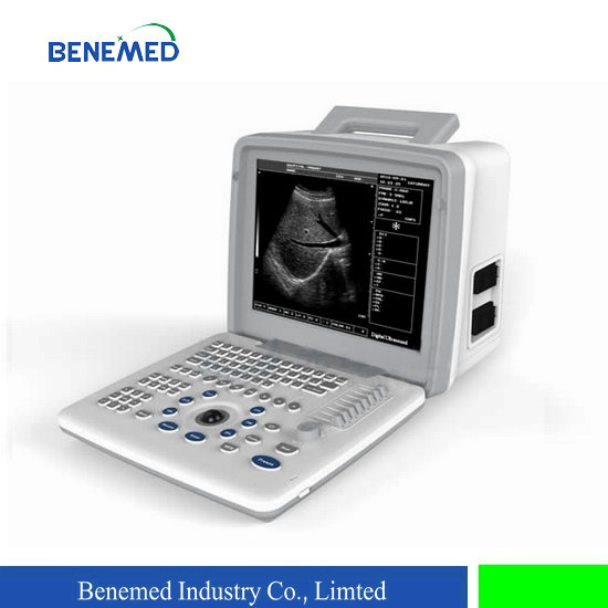 Portable LED screen B/W ultrasound scanner BW-5