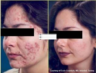 PIGMENTATION CURE INJECTIONS- FAST EFFECTIVE RESULT IN 7 DAYS