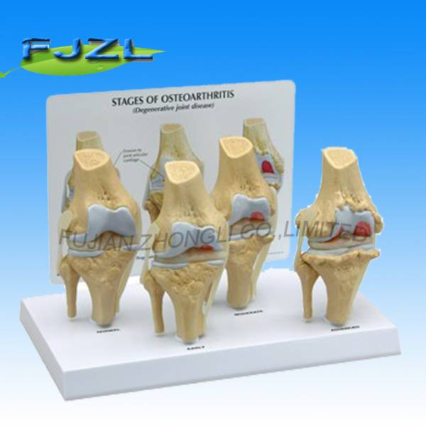 4-Stage Osteo-Arthritic Artificial Plastic Knee Joint Anatomical Model