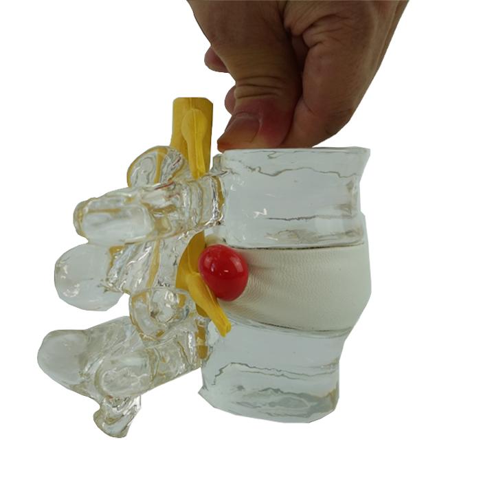 Human Crystal Vertebral Simulator Lumbar Disc Herniation Model