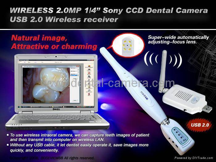 2MP SONY CCD USB Wireless receiver Dental Intraoral camera