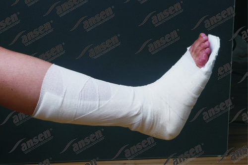 Orthopedic fiberglass splint