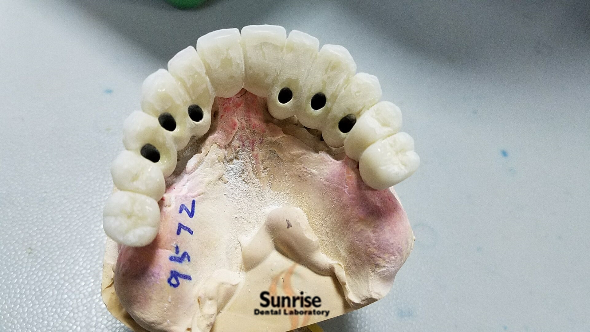 Dental Products--Implant