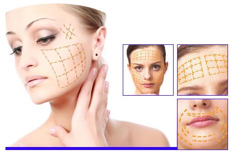 Rosca Facial De Belleza Polydioxanone Que Levanta Con La Aguja: Hilo De Pcl