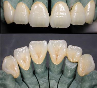 Cobalt Chromium Implant Porcelain Teeth