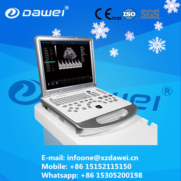 portable doppler ultrasound machine & laptop color doppler ultrasound scanner