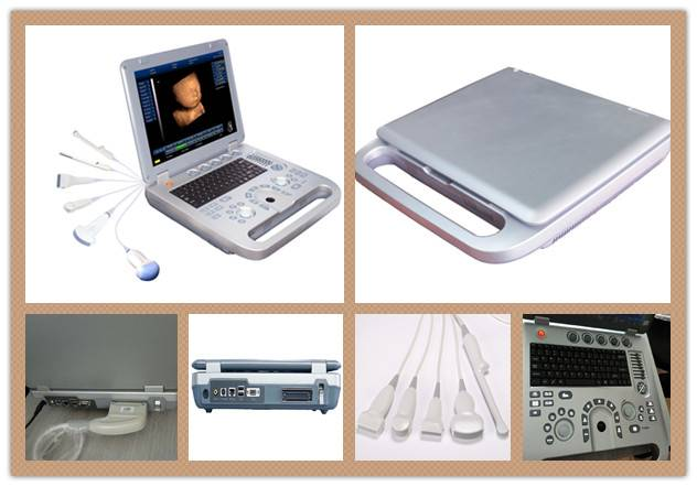 New 3D Portable Ultrasound price