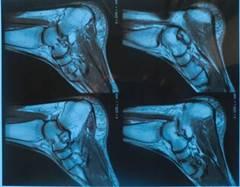 Konica medical thermal film/fuji laser film for CT/CR machine