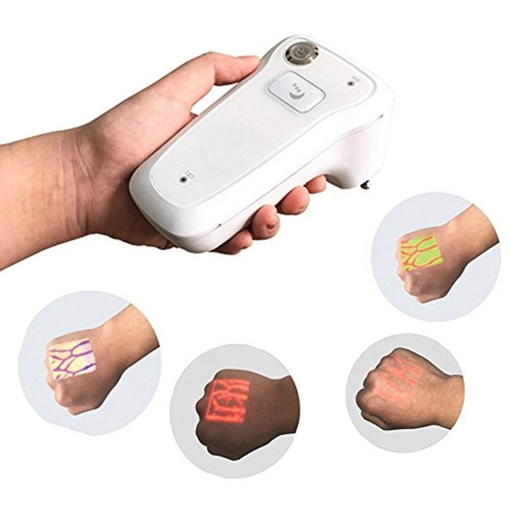 Medical Hospital Injection Vein Locator Vein Detector Cheapest Portable Infrared Vein Finder Clinica