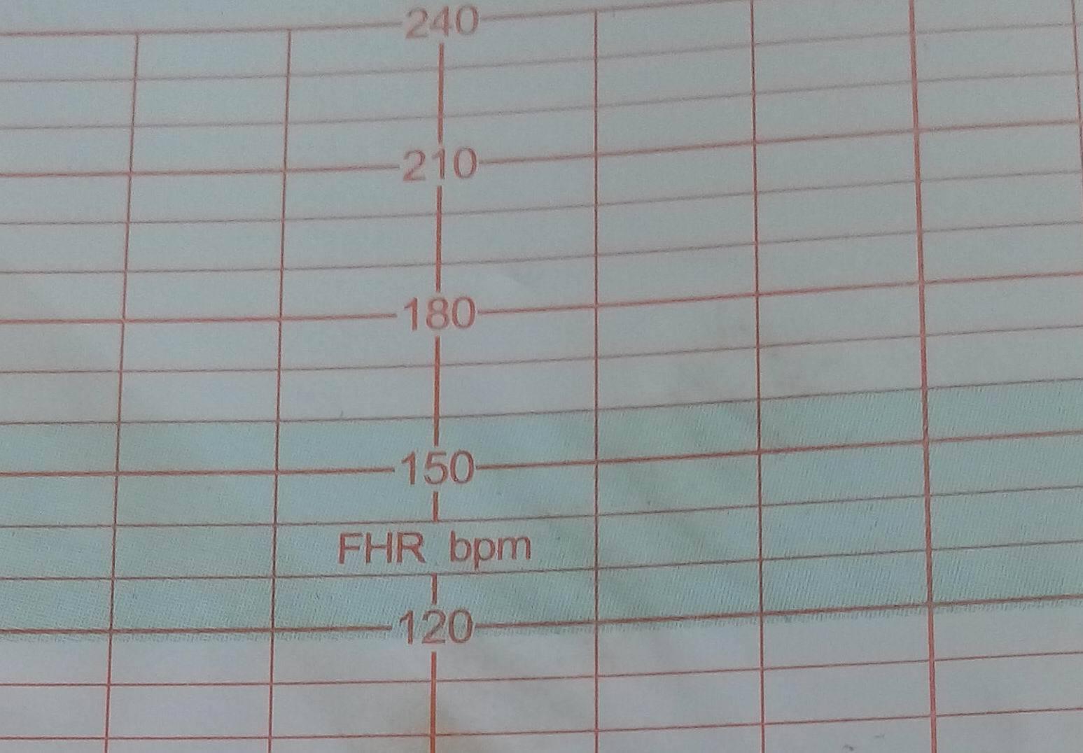 Fetal Monitor Paper-112mmX100mm-150P(SUNRAY)