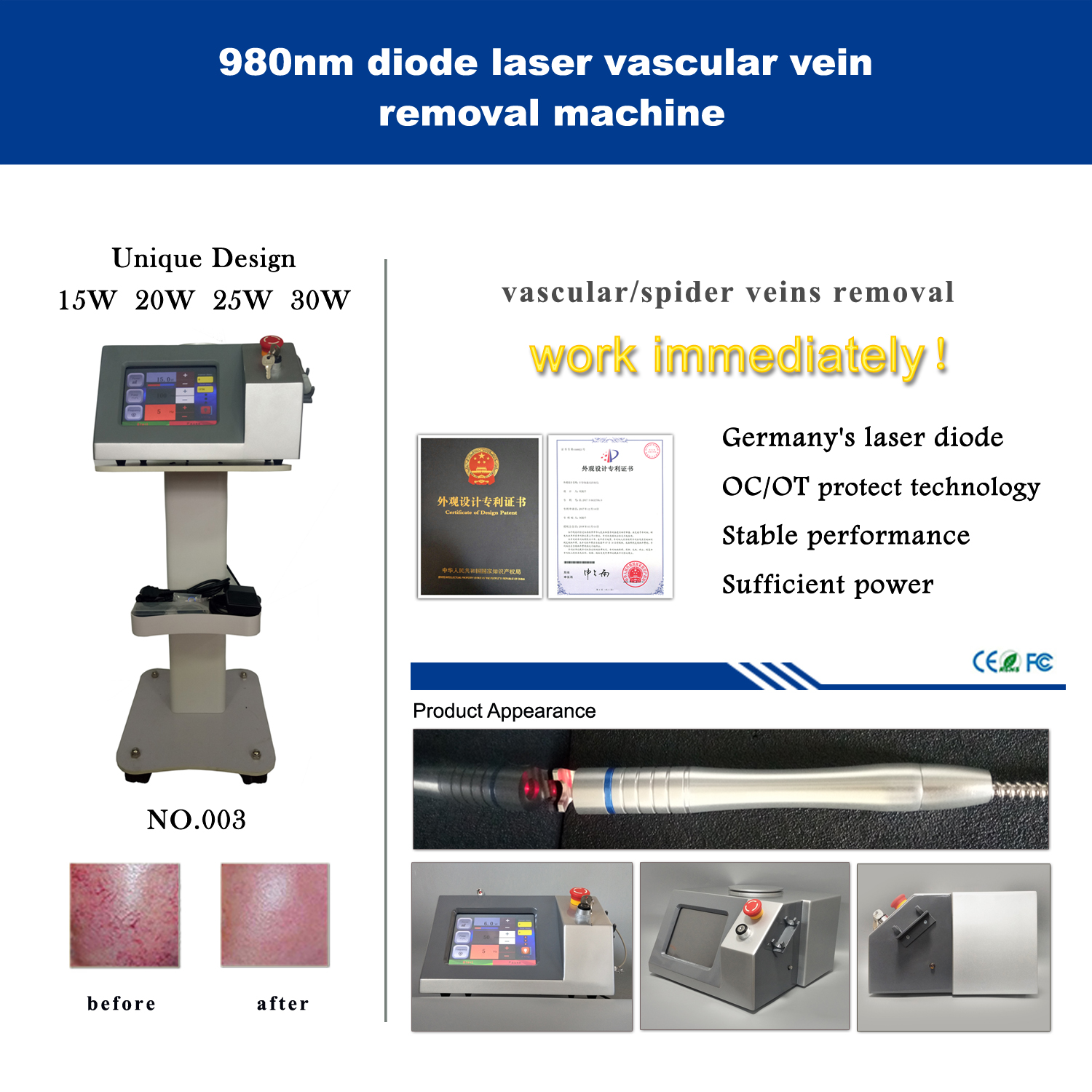 980nm vascular vein removal machine-Silver version