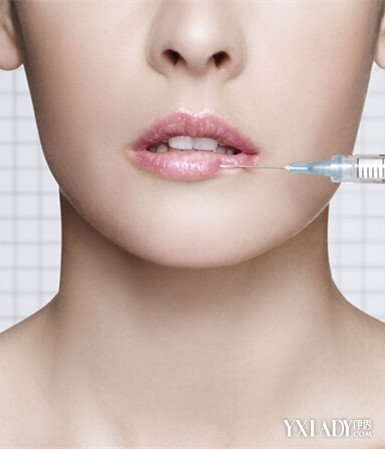 Ce Safe and Effective Lips Enhance Cross-Linked Hyaluronic Acid Pure Natural Dermal Filler
