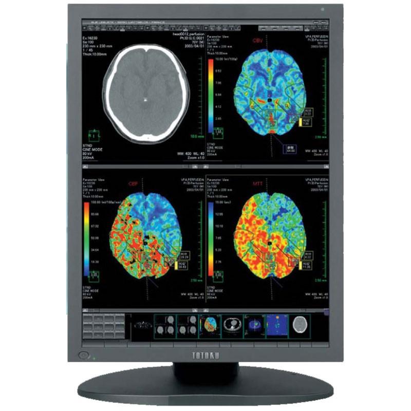 pacs monitors / radiology medical imaging monitors