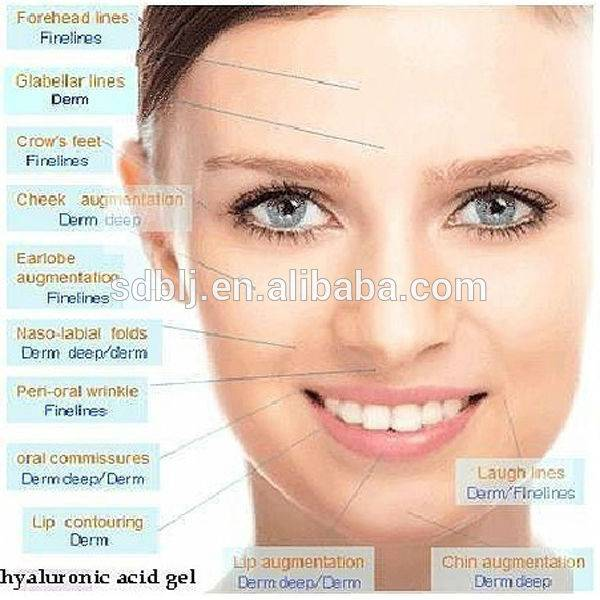 Hyaluronic acid gel; ha filler ;injection