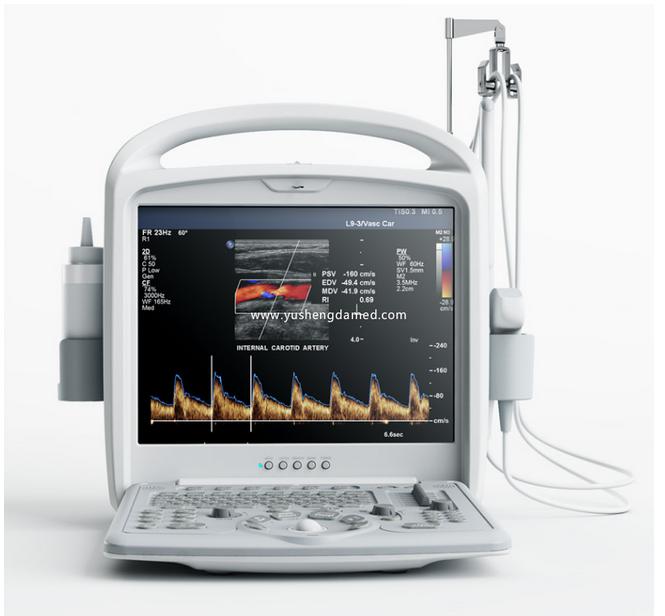 Digital Diagnostic 3D Color Doppler Portable Ultrasound Machine