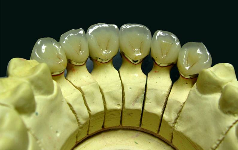 Silver palladium Alloy Ceramic teeth