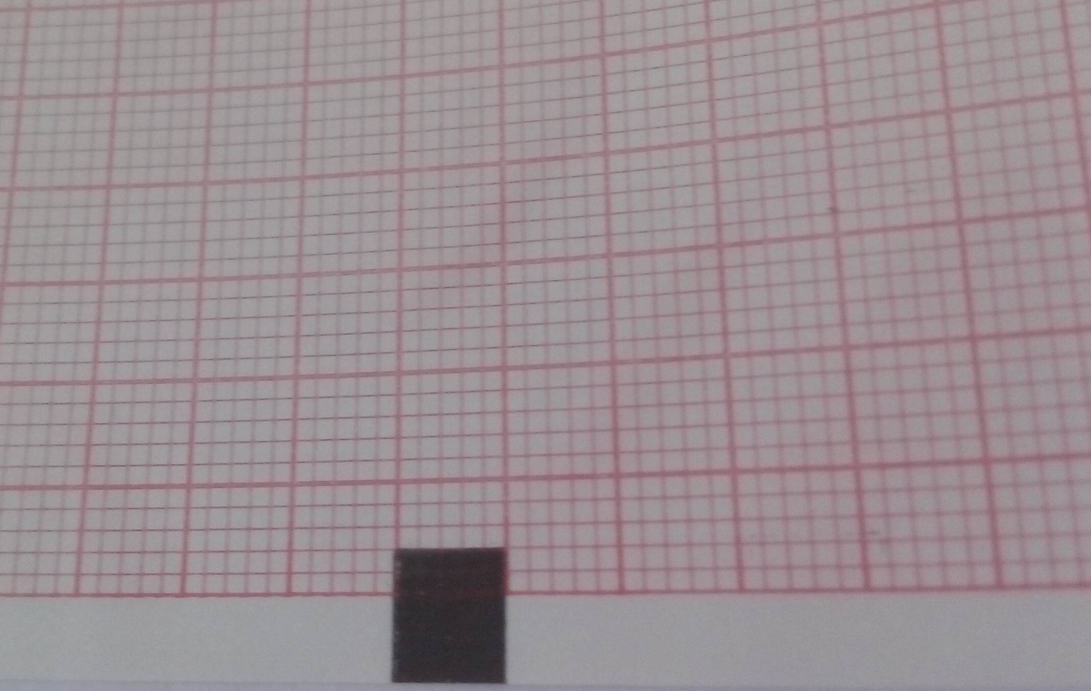Twelve-Conduct Electrocardiograph Paper-183mmX130mm-200P