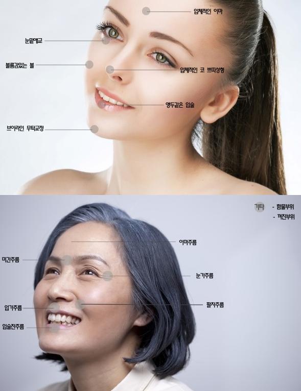 Dermal Filler Sofiderm Hyaluronic Acid for Remove Wrinkles