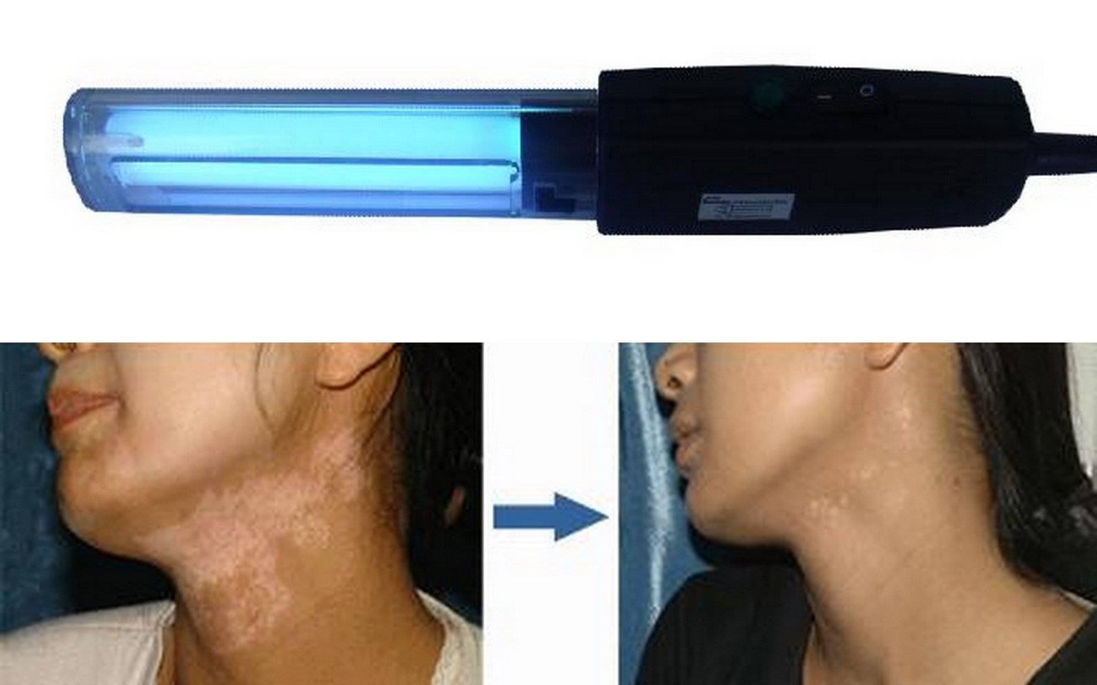 311nm narrow band uvb lamp for vitiligo
