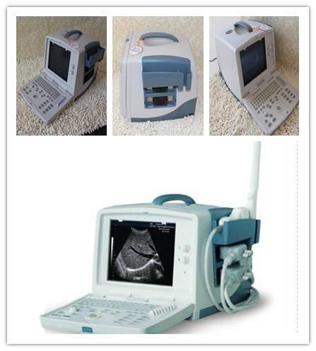 portable 3D ultrasound  SUN-800L/Pregnancy ultrasound