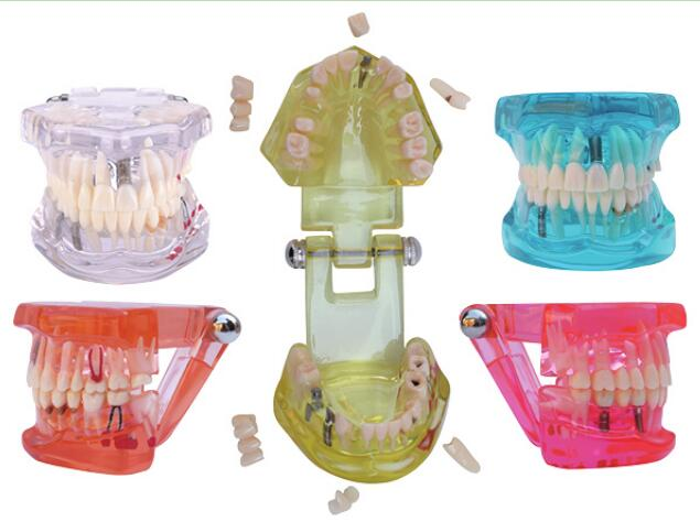 Dental Upper & Lower Jaws Advanced Work Restoration Combination 3 Implant 2 Bridges 7 Crowns Veneer