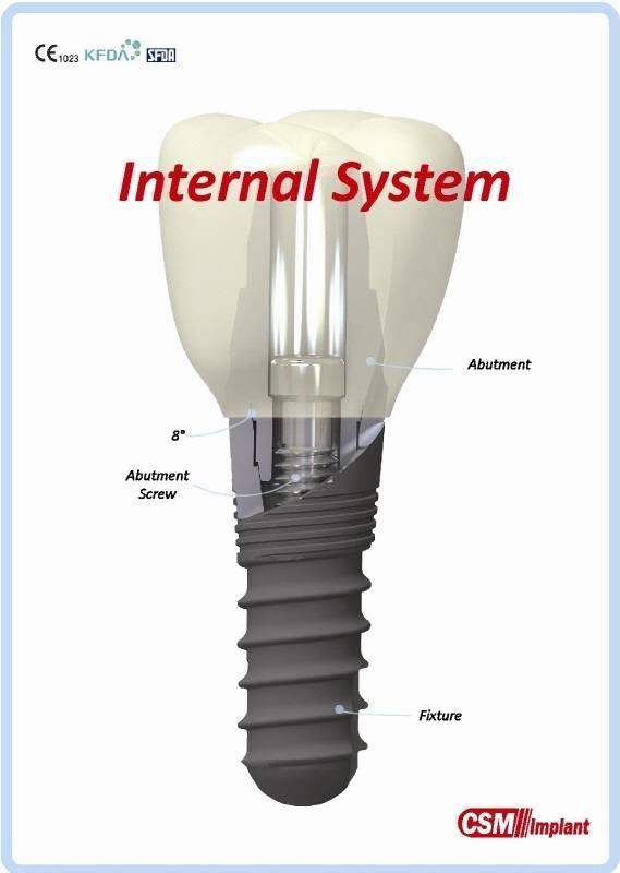 Submerged Implant Kit