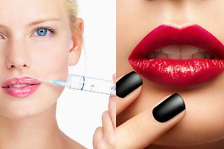 Injectable Anti-Wrinkle Hyaluronic Acid Cross-Linked Dermal Filler