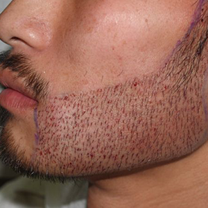 Hair treatment on Beard in India